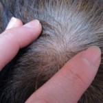 のぶよ様 頭頂部の髪が密集してきた!