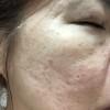 久仁子様報告3/11乾燥肌が改善されおでこのシワも大分良くなった!