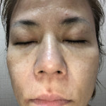 4/17久仁子様報告:肌触りサッパリして 大満足!